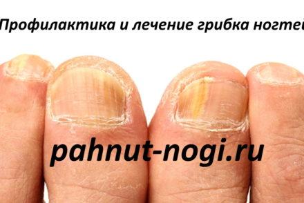 Профилактика и лечение грибка ногтей